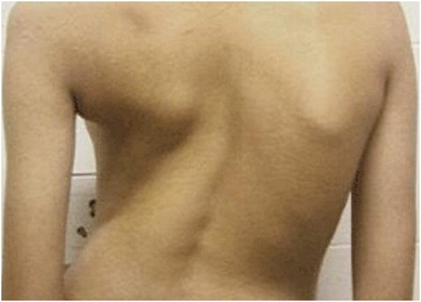 Туберкулез костей и суставов у детей