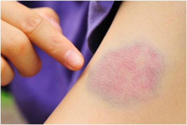 Почему прививка манту синяя
