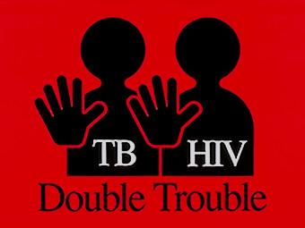 Диагностика и лечение туберкулеза и ВИЧ