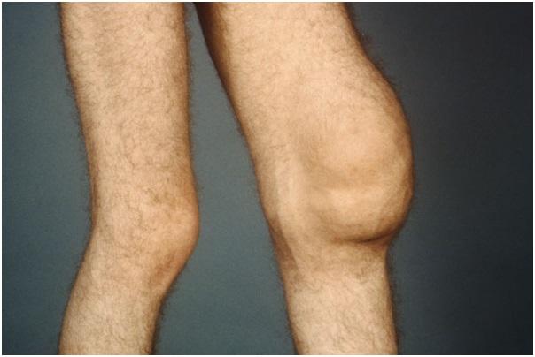 Лечение и определение туберкулеза коленного сустава