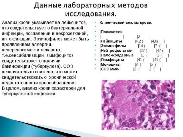 Отклонение анализа крови при туберкулезе